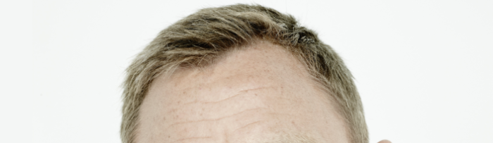 Daniel Craig's forehead with white background
