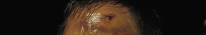 Daniel Craig's bloody forehead in Casino Royale