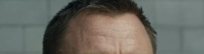 Bond's forehead in Skyfall
